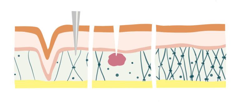 Microneedling löst Wundheilung aus und bildet neues Kollagen